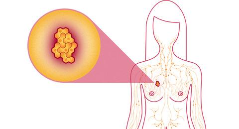 mamografiniai tyrimai